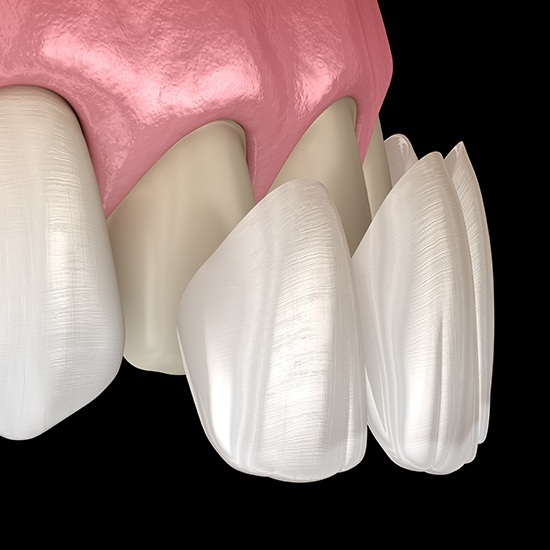 Computer illustration of porcelain veneers placement