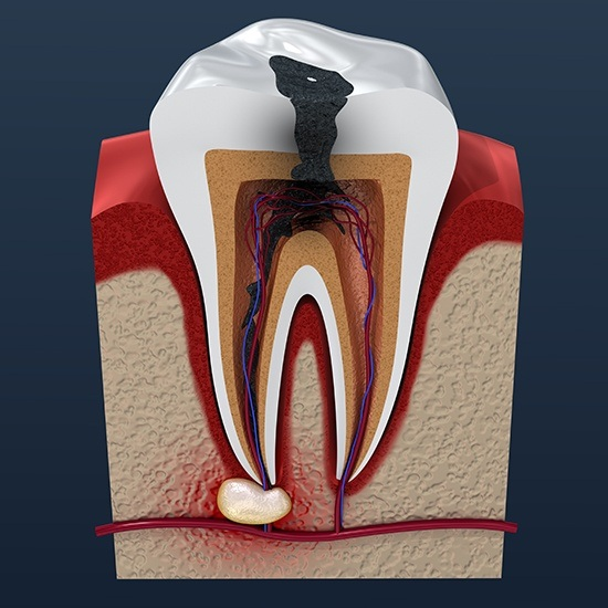 Computer illustration of tooth in need of root canal