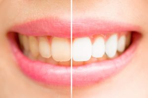 How Well Does Teeth Whitening Toothpaste Really Work