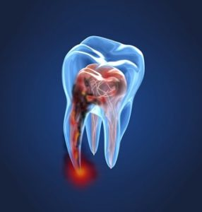 Drawing of an infected tooth